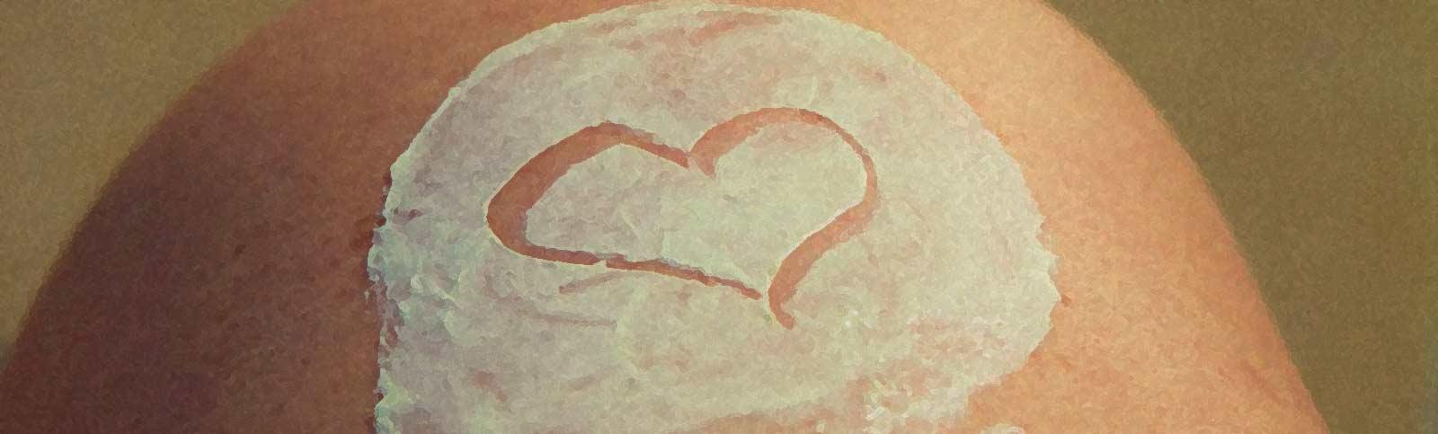Keloid Scar 101: What It Is & How to Treat It